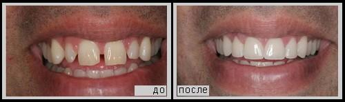 Клинический случай 2 - реставрация зубов